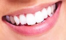 Comment avoir les dents blanches, les astuces de grand mère qui fonctionne